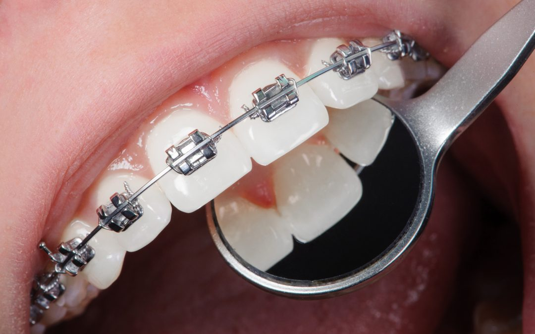 How to survive adult braces