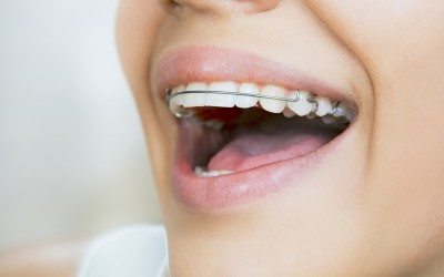 Why do patients stop wearing their retainers?