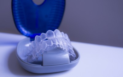 Why is Invisalign so popular?