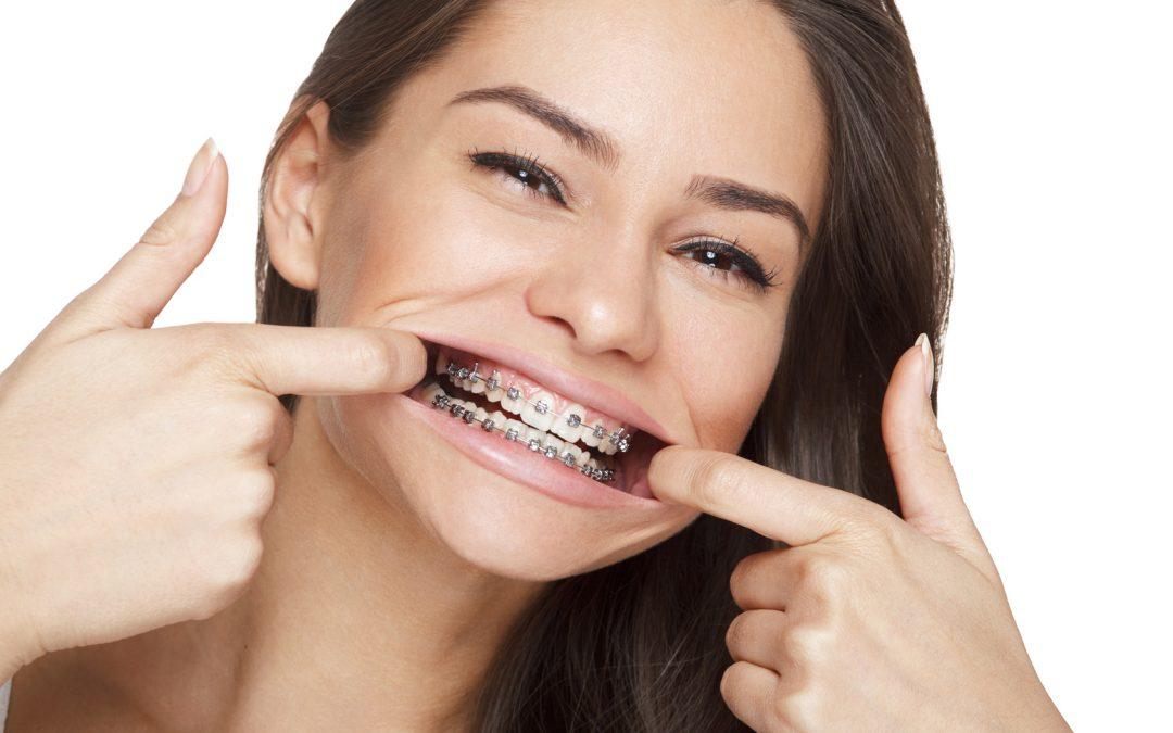 More UK adults are seeking orthodontic treatment