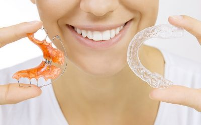 Top ten retainer tips