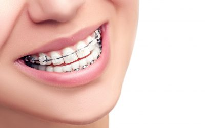 Social perceptions of adults wearing orthodontic appliances