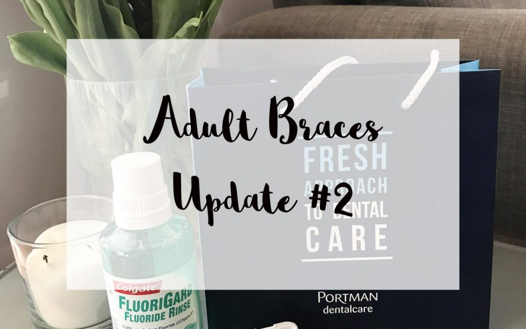 A braces blog update from Jade