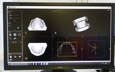 Orthodontic technology is fascinating