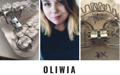 A coffee with Orthodontic technician, Oliwia Adamkiewicz